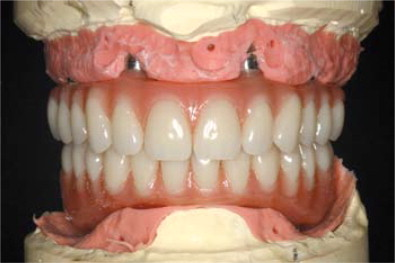 The Use Of Computer Guided Flapless Implant Surgery And