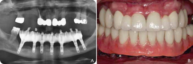dental prosthetic for a 5 year old child I am 30 years old and absolutely hate my teeth  i've been missing one of my  teeth since i was a little girl and i just never got around to having.